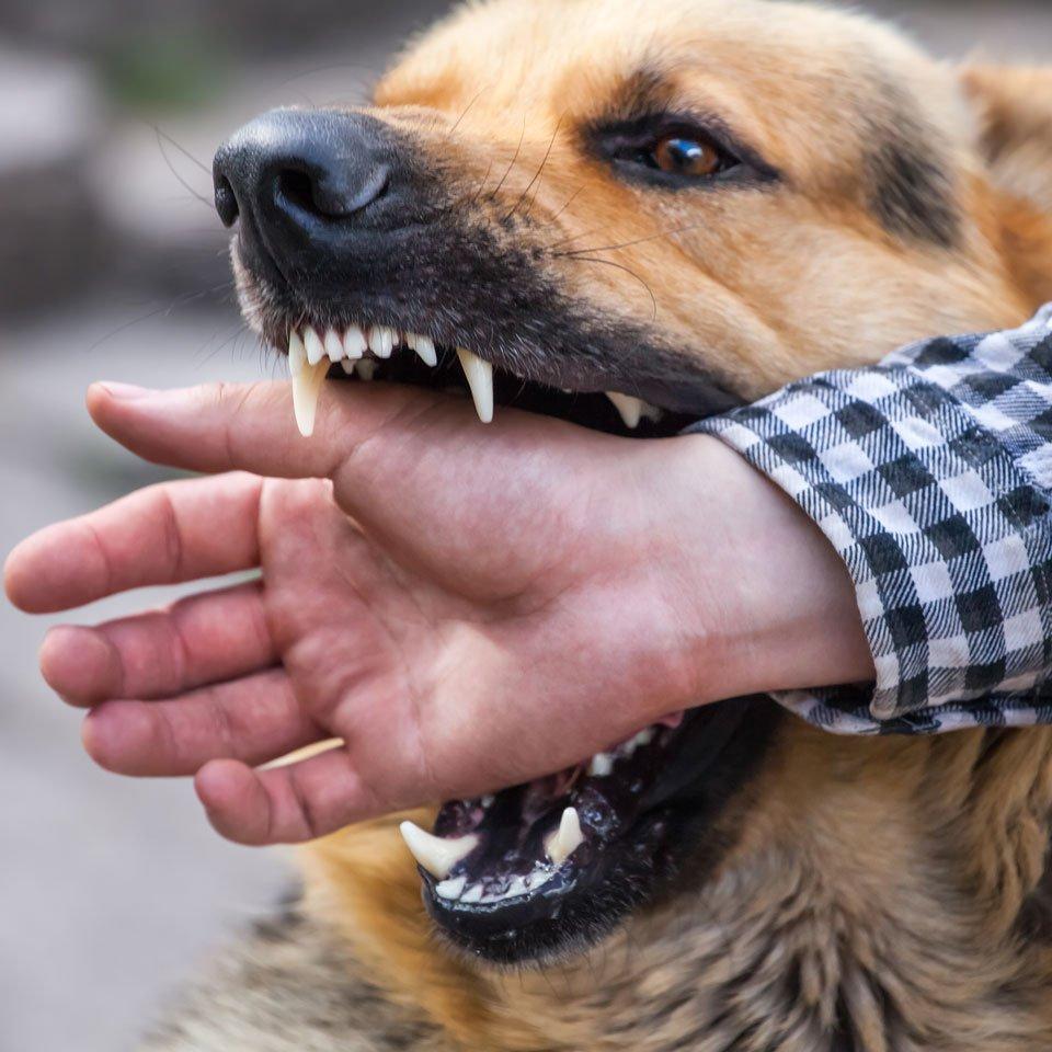 Dog Bite Attack